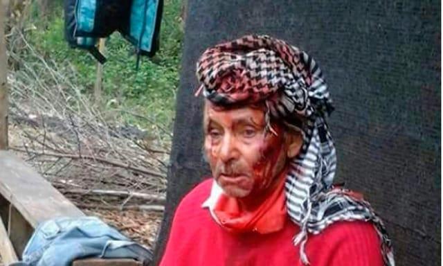 Reprimen con balas de plomo a Mapuches en Chubut: tres heridos graves
