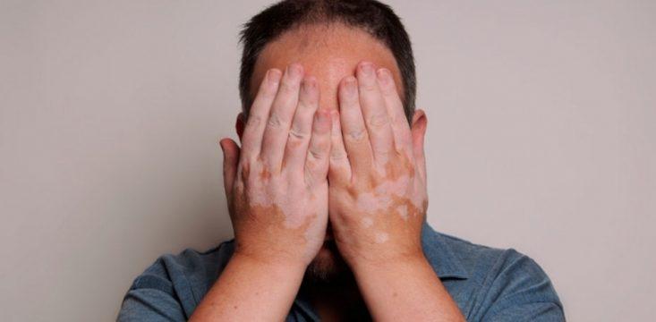 Vitiligio: una enfermedad de la piel que aísla