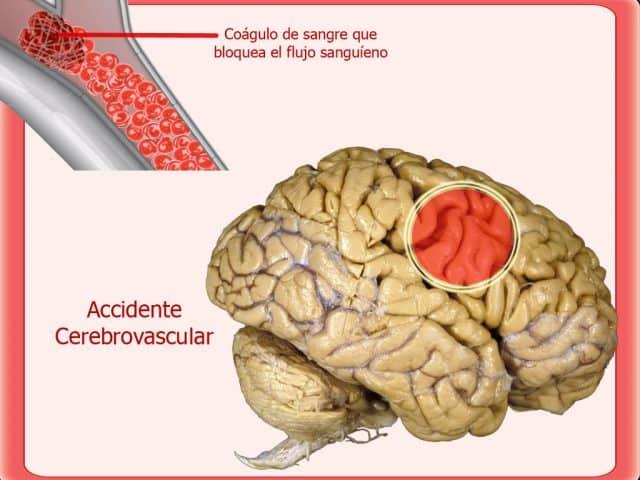 Qué es y cómo se previene un accidente cerebrovascular.