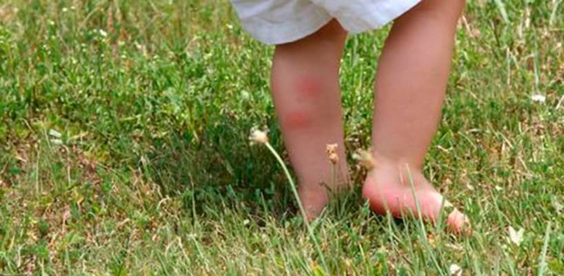 Verano saludable: Cómo proteger a los niños de las picaduras de mosquitos